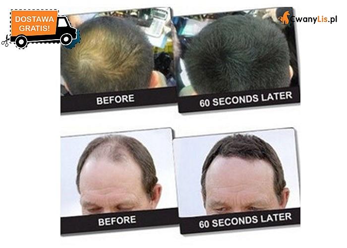 Niezwykły zestaw do pielęgnacji włosów! Naturalne podcienie! Pokrywa łyse i przerzedzone miejsca w mniej niż 30 sekund!